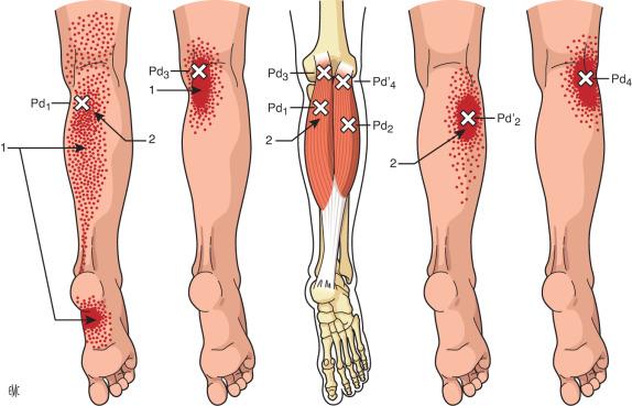 trombosis de la vena gastrocnemio medial + tratamiento