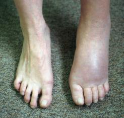 Algodistrofia (síndrome doloroso regional complejo de tipo I) del ...