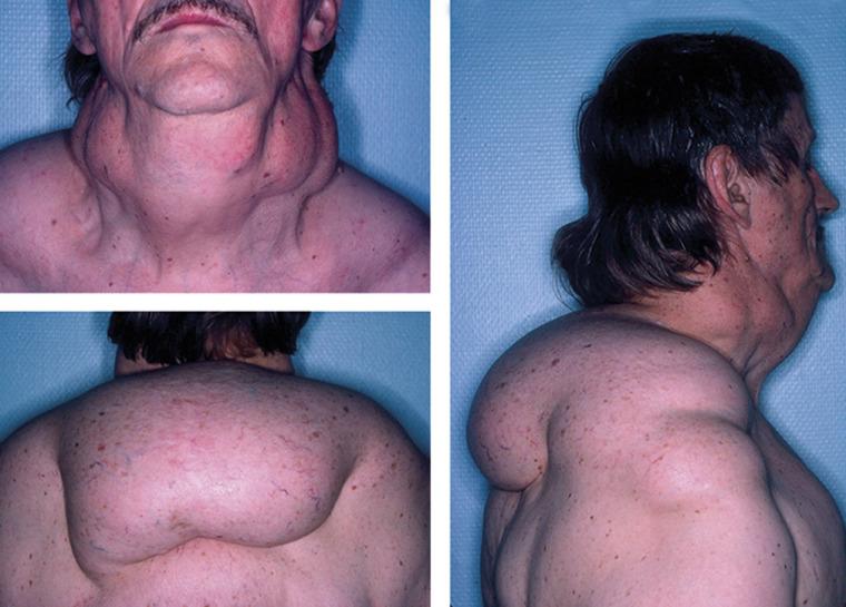 dolore peloso nella zona pelvica inferiore