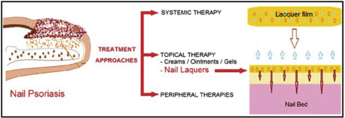 Nail Psoriasis An Updated Review Of Clinical Reports On Therapy And