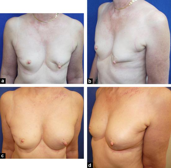 Atkins en 1972. après traitement conservateur, une reconstruction mammaire (immédiate ou différée).