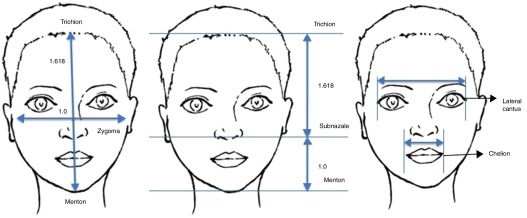 Assessment of facial analysis measurements by golden