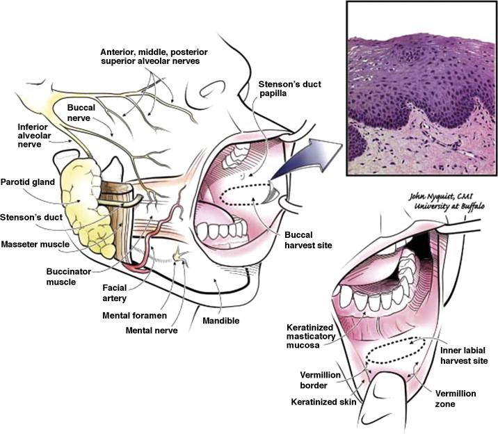 Diagram Lip Mucosa Detailed Schematics Diagram
