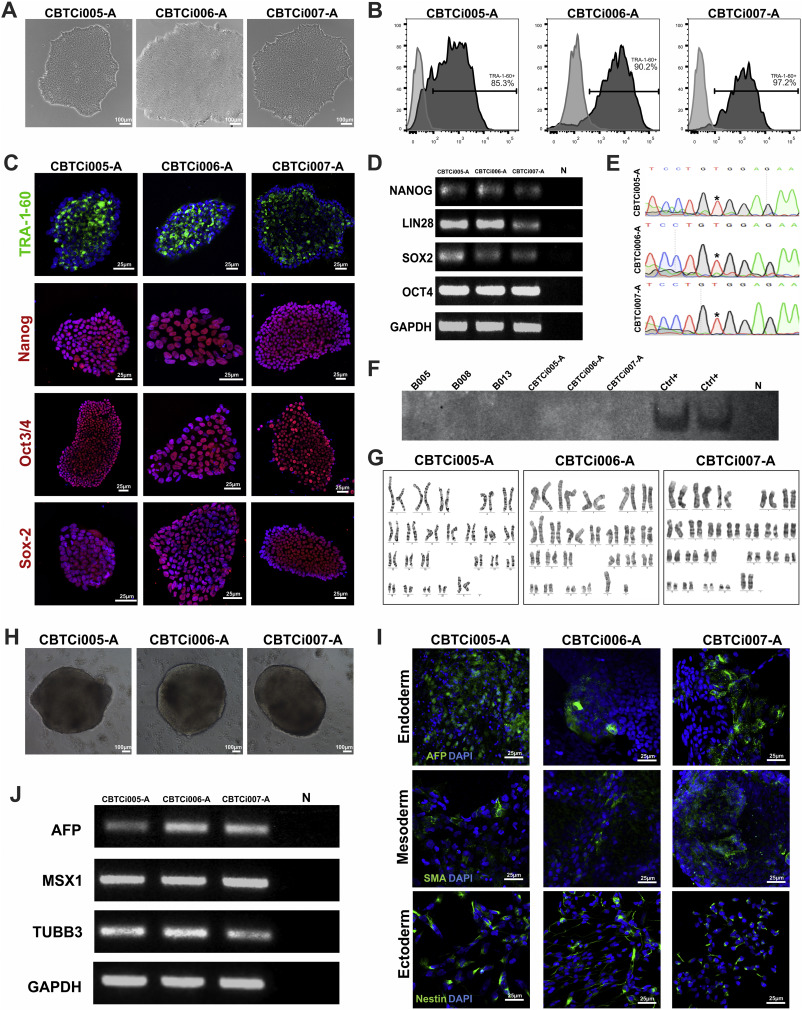 Generation of integration-free iPS cell lines from three sickle cell