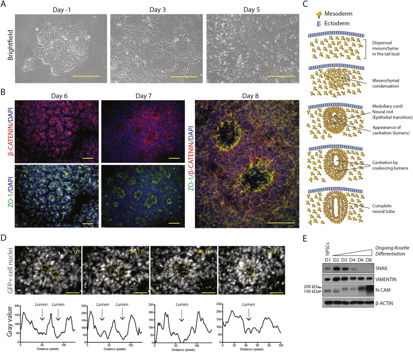 Differentiation of neural rosettes from human pluripotent