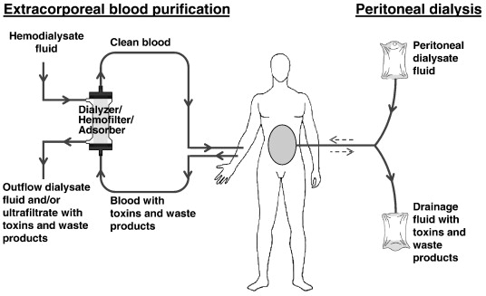 Proteomics In Extracorporeal Blood Purification And Peritoneal