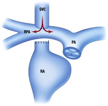 Palliative Procedures For Congenital Heart Defects Sciencedirect