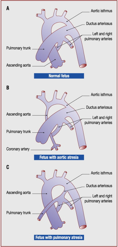 The ductus arteriosus: Physiology, regulation, and functional and ...