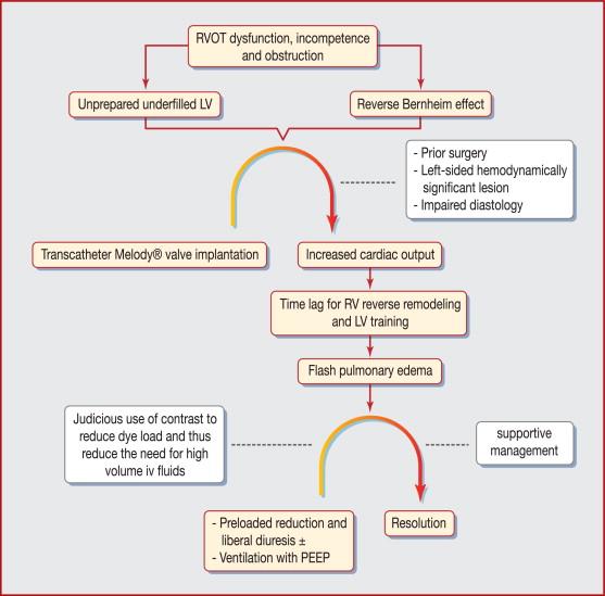 Hyperacute Flash Pulmonary Oedema After Transcatheter Pulmonary