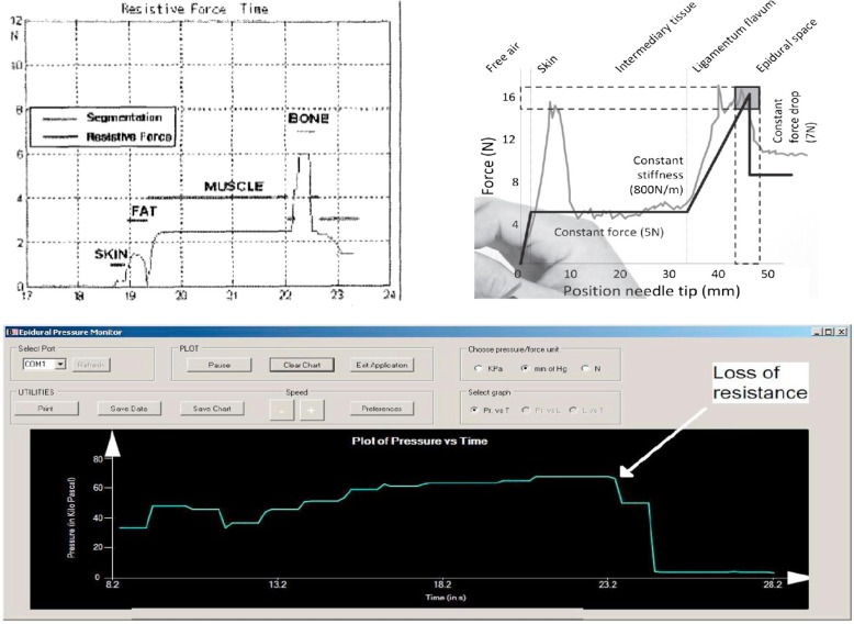 Haptic forces and gamification on epidural anesthesia skill gain