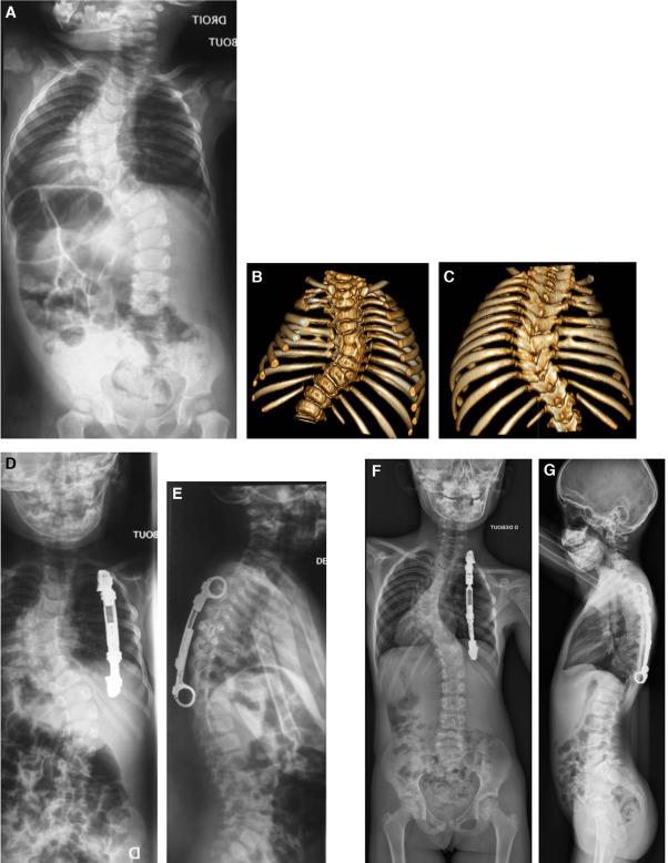 Chirurgie sans fusion des scolioses à début précoce - ScienceDirect
