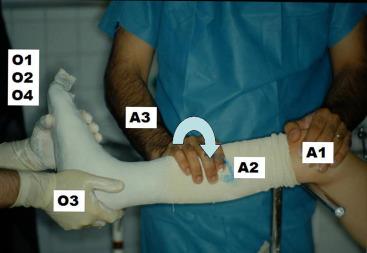 Le traitement orthopédique des pieds creux varus neurologiques de l ...