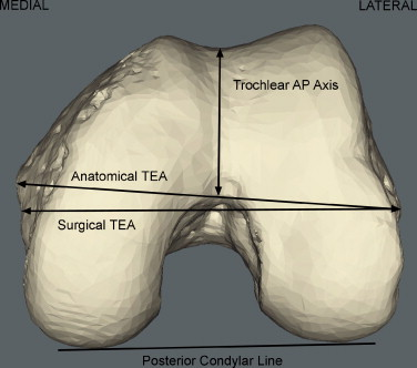 Rotational alignment of the distal femur: A literature review ...