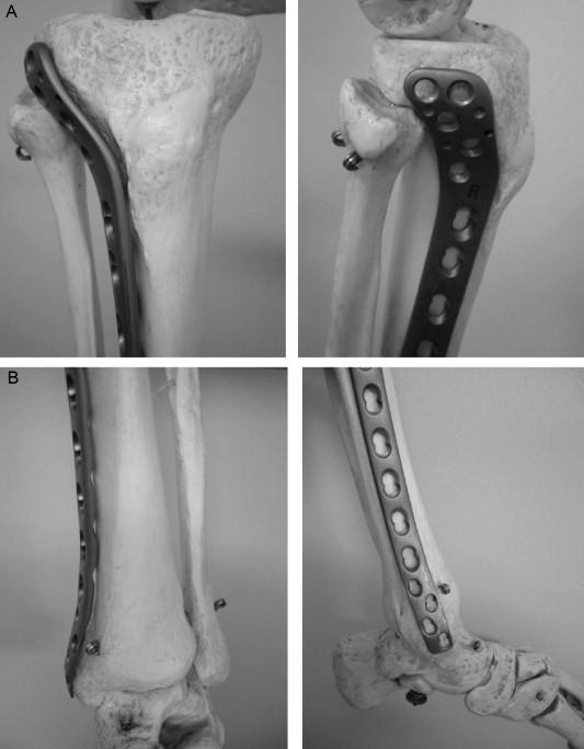 Minimally invasive locking screw plate fixation of non