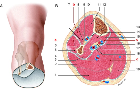 Acute compartment syndrome of the leg: Pressure measurement and ...