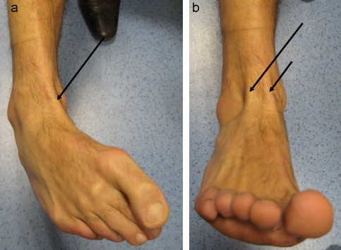 Open And Subcutaneous Recent Tibialis Anterior Tendon