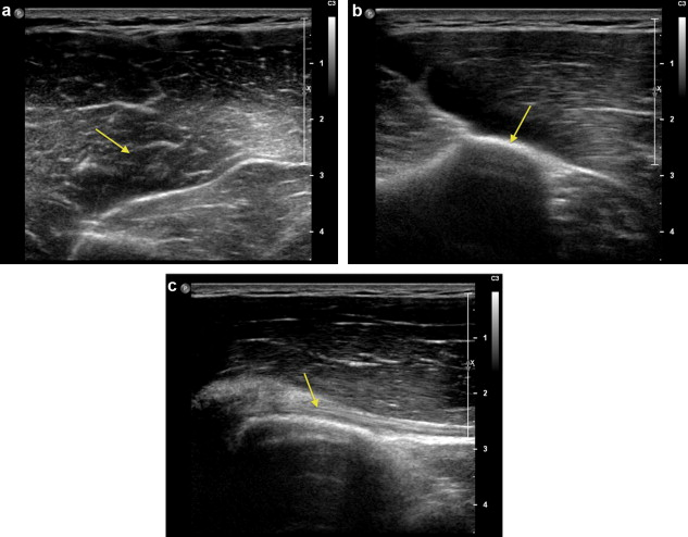 Teres Major Muscle Tear In Two Professional Ice Hockey Players
