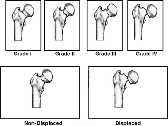 A. The Four Grade Garden Classification, Questionnaire Of The Observers. B.  Classification: U0027non Displacedu0027 And U0027displacedu0027.