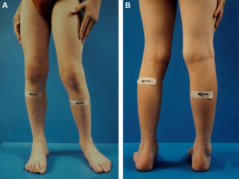The Talonavicular And Subtalar Joints The Calcaneopedal Unit
