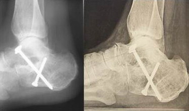 Risk Of Osteoarthritis Secondary To Partial Or Total Arthrodesis Of