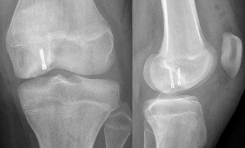 Sports-related overuse injuries in children - ScienceDirect