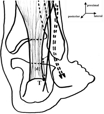 Risk Of Sural Nerve Injury During Lateral Distal Achilles