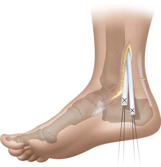 Double Tendon Transfer For Correction Of Drop Foot Sciencedirect