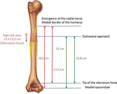 Radial nerve palsy in surgical revision of total elbow ...