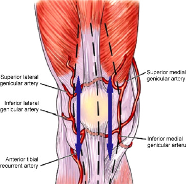 Extensor Tendon Ruptures After Total Knee Arthroplasty