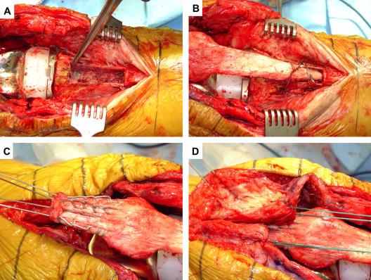 Extensor tendon ruptures after total knee arthroplasty