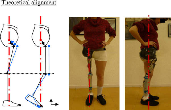 Amputation and prosthesis fitting in paediatric patients