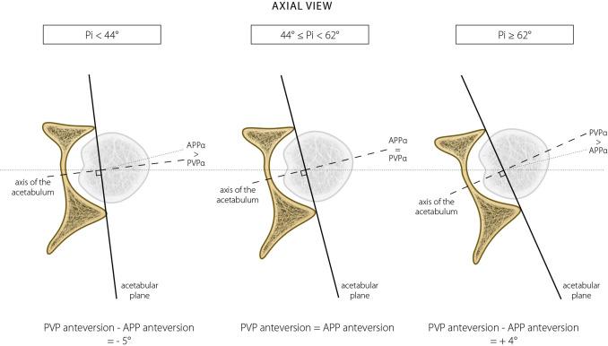 Acetabular Retroversion