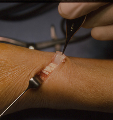de quervain surgery complications