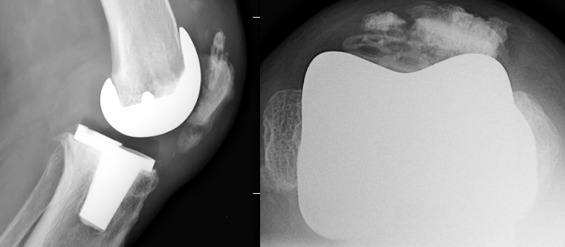 Patellar complications after total knee arthroplasty