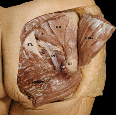 The Piriformis Muscle Syndrome An Exploration Of Anatomical Context