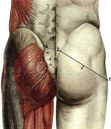 Piriformis Muscle Syndrome Diagnostic Criteria And Treatment Of A
