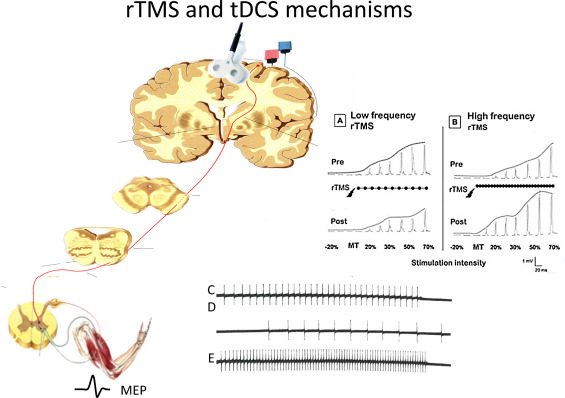 Repetitive transcranial magnetic stimulation and transcranial direct