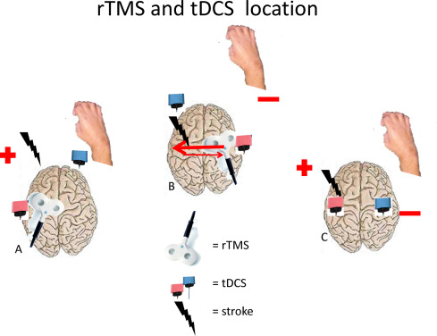 Repetitive transcranial magnetic stimulation and