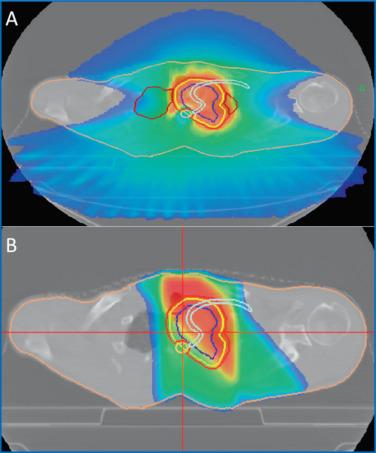 Cancer du poumon : « Les » radiothérapies - ScienceDirect