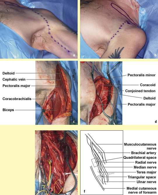 The anatomy, investigations and management of adult brachial plexus ...