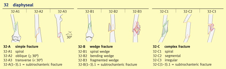 Femoral shaft fractures in adults - ScienceDirect