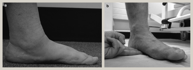 Adult flat foot deformity - ScienceDirect