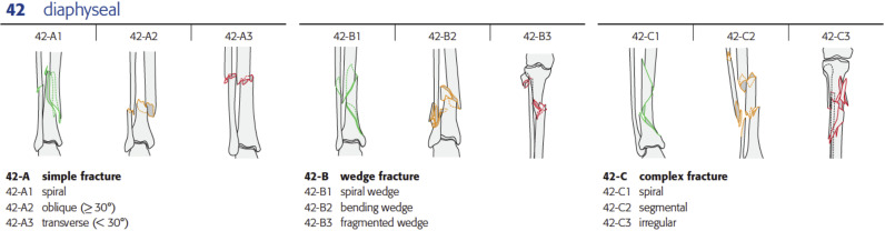 Closed fractures of the tibial shaft in adults - ScienceDirect