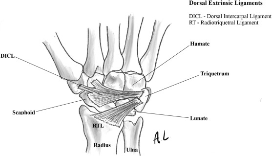Acute and chronic scapholunate ligament instability - ScienceDirect
