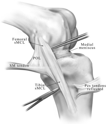Medial Collateral Ligament Of The Knee Anatomy Management And