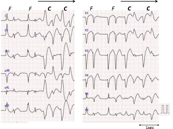 Various Morphologies Of Bidirectional Ventricular Tachycardia Caused By Aconite Torikabuto Poisoning Sciencedirect