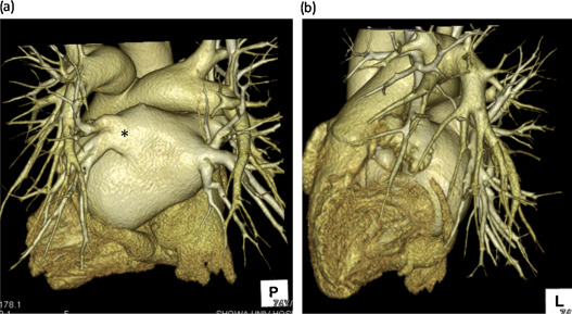 Pulmonary vein obstruction after catheter ablation in a patient with ...