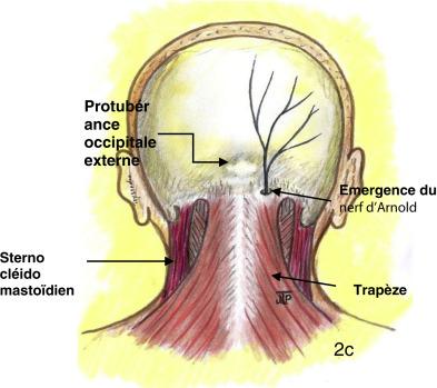 La Névralgie D Arnold Existe T Elle Sciencedirect