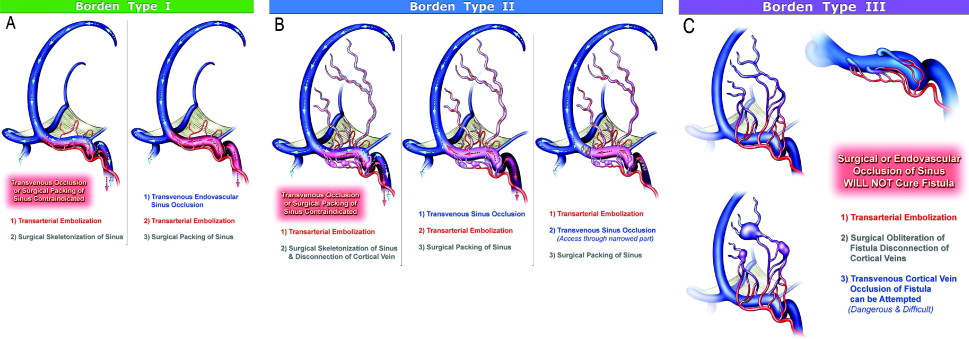Multimodality Treatment Of Intracranial Dural Arteriovenous Fistulas