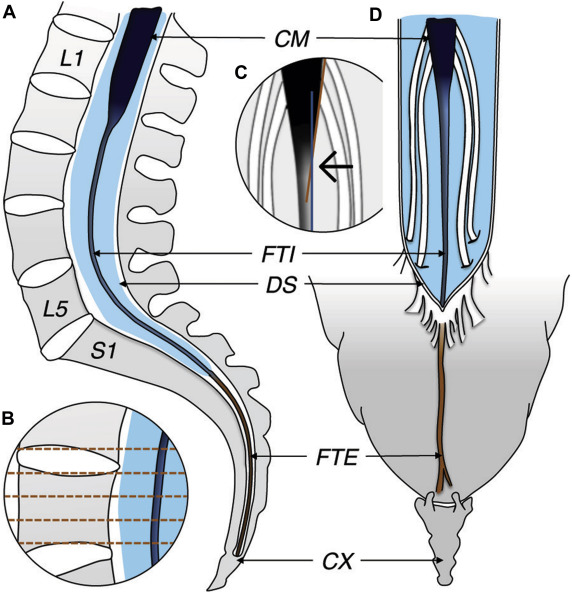 The Filum Terminale A Cadaver Study Of Anatomy Histology And Elastic Properties Sciencedirect A long strand of connective tissue extending from the apex of the medullary cone to the coccyx, providing longitudinal support to. the filum terminale a cadaver study of